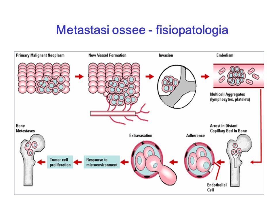Metastasi ossee - fisiopatologia