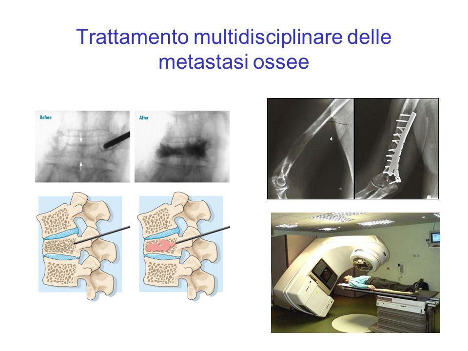Trattamento multidisciplinare delle metastasi ossee