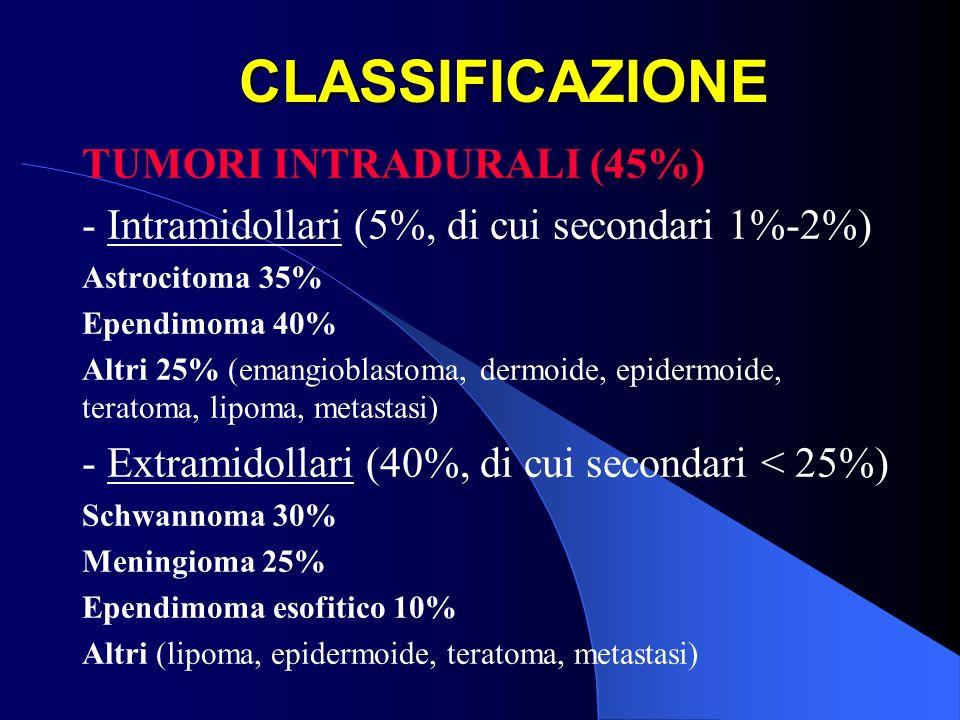 CLASSIFICAZIONE TUMORI INTRADURALI (45%) - Intramidollari (5%, di cui secondari 1%-2%) Astrocitoma 35% Ependimoma 40% Altri 25% (emangioblastoma, derm