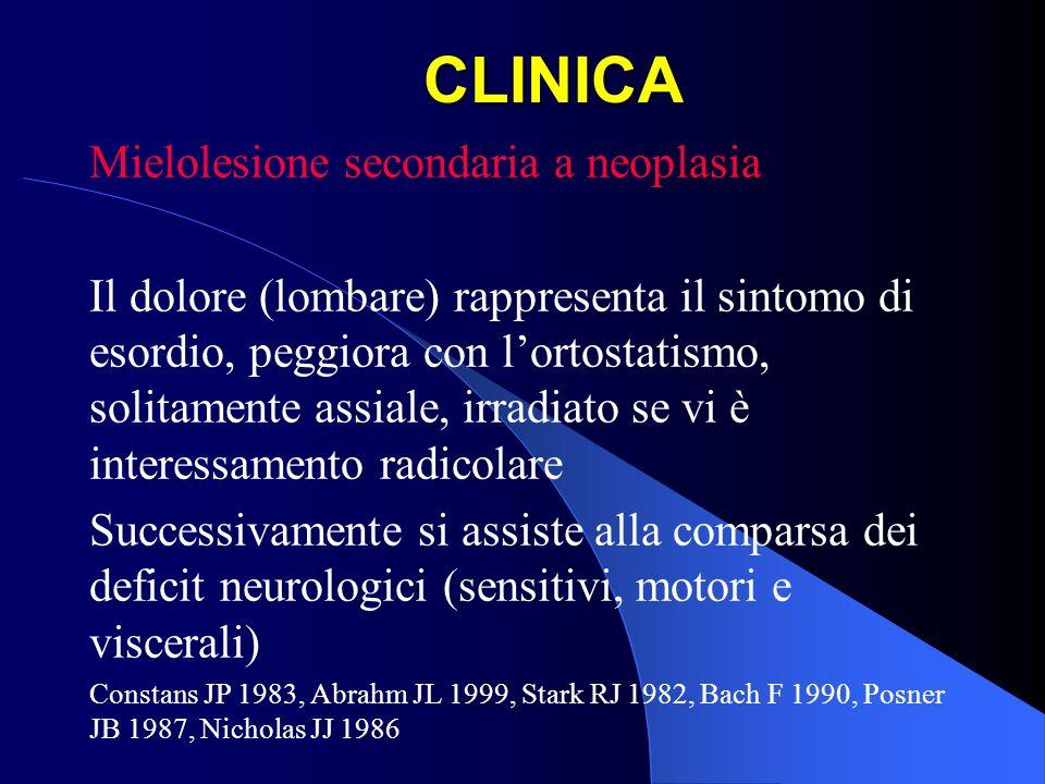 CLINICA Mielolesione secondaria a neoplasia Il dolore (lombare) rappresenta il sintomo di esordio, peggiora con lortostatismo, solitamente assiale, ir