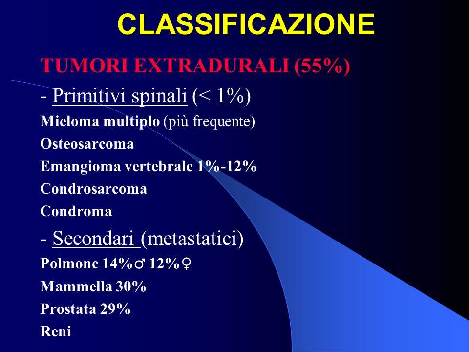 CLASSIFICAZIONE TUMORI INTRADURALI (45%) - Intramidollari (5%, di cui secondari 1%-2%) Astrocitoma 35% Ependimoma 40% Altri 25% (emangioblastoma, dermoide, epidermoide, teratoma, lipoma, metastasi) - Extramidollari (40%, di cui secondari < 25%) Schwannoma 30% Meningioma 25% Ependimoma esofitico 10% Altri (lipoma, epidermoide, teratoma, metastasi)