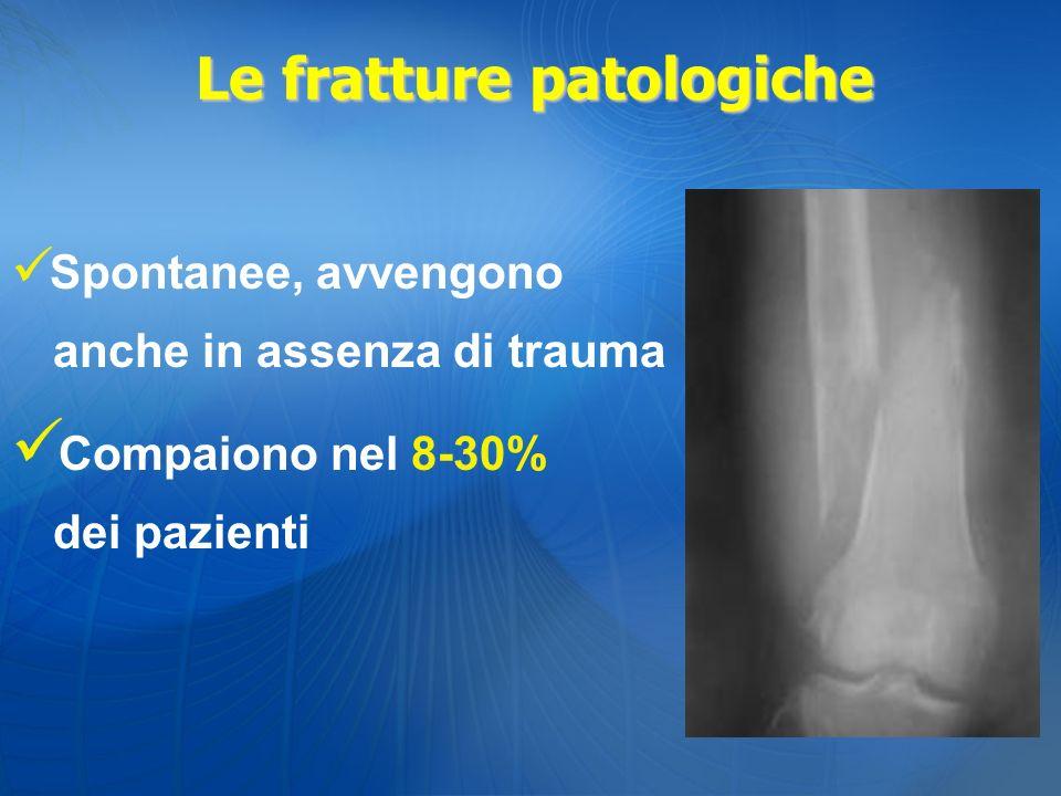 Spontanee, avvengono anche in assenza di trauma Compaiono nel 8-30% dei pazienti Le fratture patologiche
