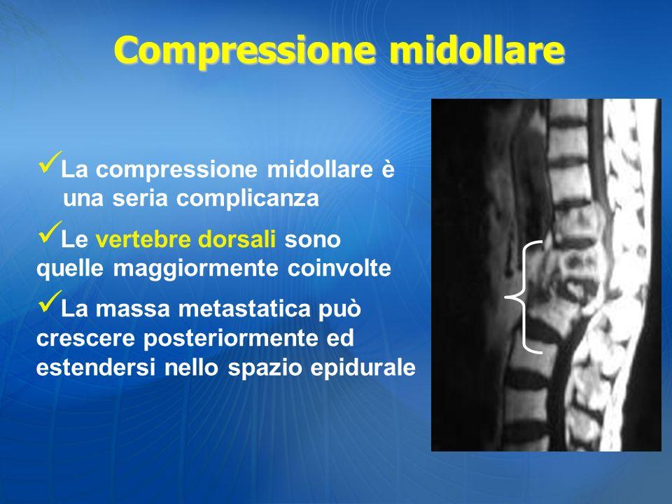 La compressione midollare è una seria complicanza Le vertebre dorsali sono quelle maggiormente coinvolte La massa metastatica può crescere posteriorme