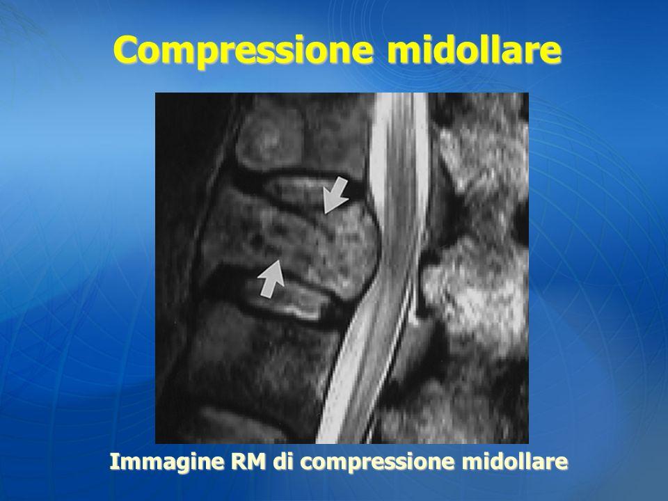 Compressione midollare Immagine RM di compressione midollare