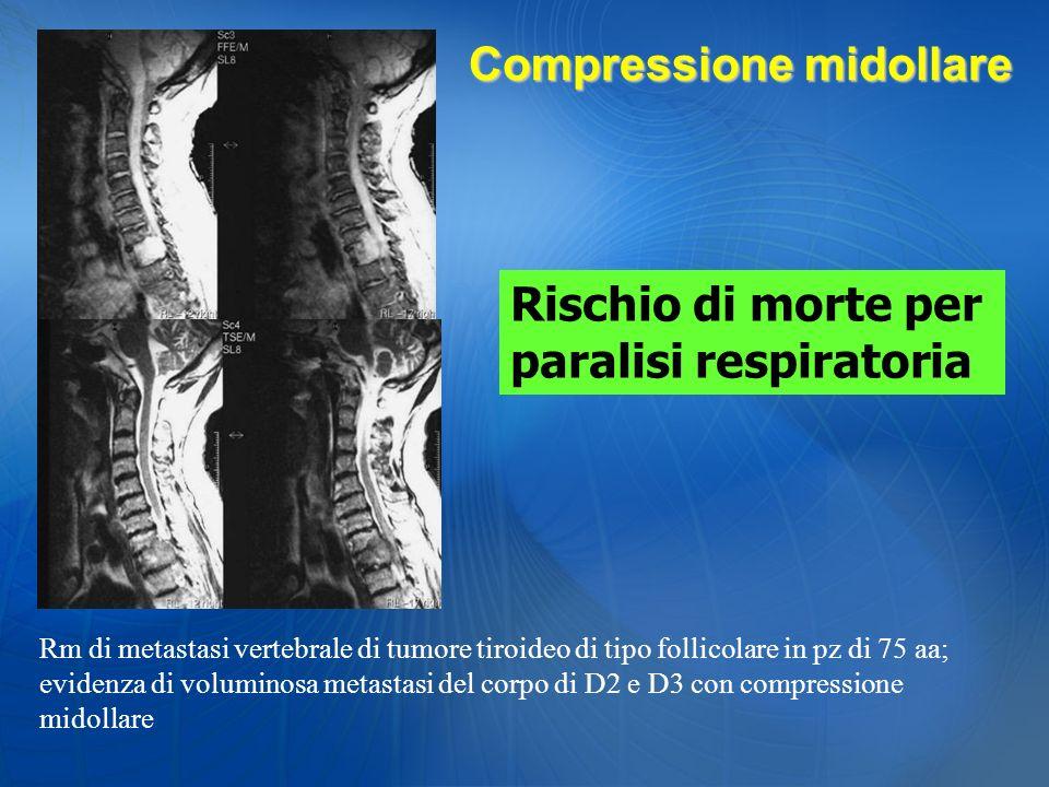 Rm di metastasi vertebrale di tumore tiroideo di tipo follicolare in pz di 75 aa; evidenza di voluminosa metastasi del corpo di D2 e D3 con compressio