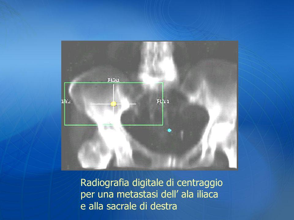 Radiografia digitale di centraggio per una metastasi dell ala iliaca e alla sacrale di destra