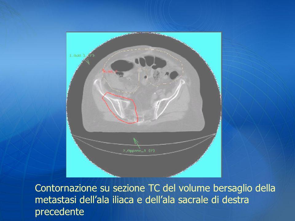Contornazione su sezione TC del volume bersaglio della metastasi dellala iliaca e dellala sacrale di destra precedente