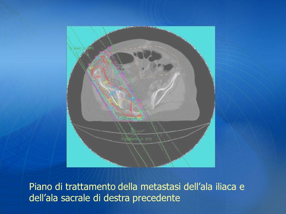 Piano di trattamento della metastasi dellala iliaca e dellala sacrale di destra precedente