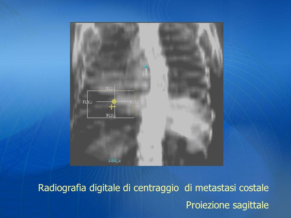 Radiografia digitale di centraggio di metastasi costale Proiezione sagittale