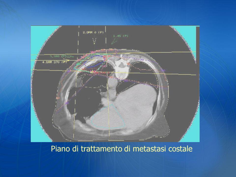 Piano di trattamento di metastasi costale