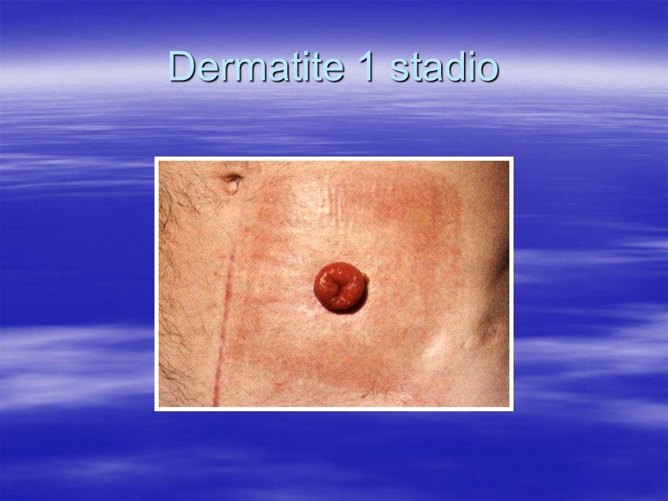 Dermatite 1 stadio