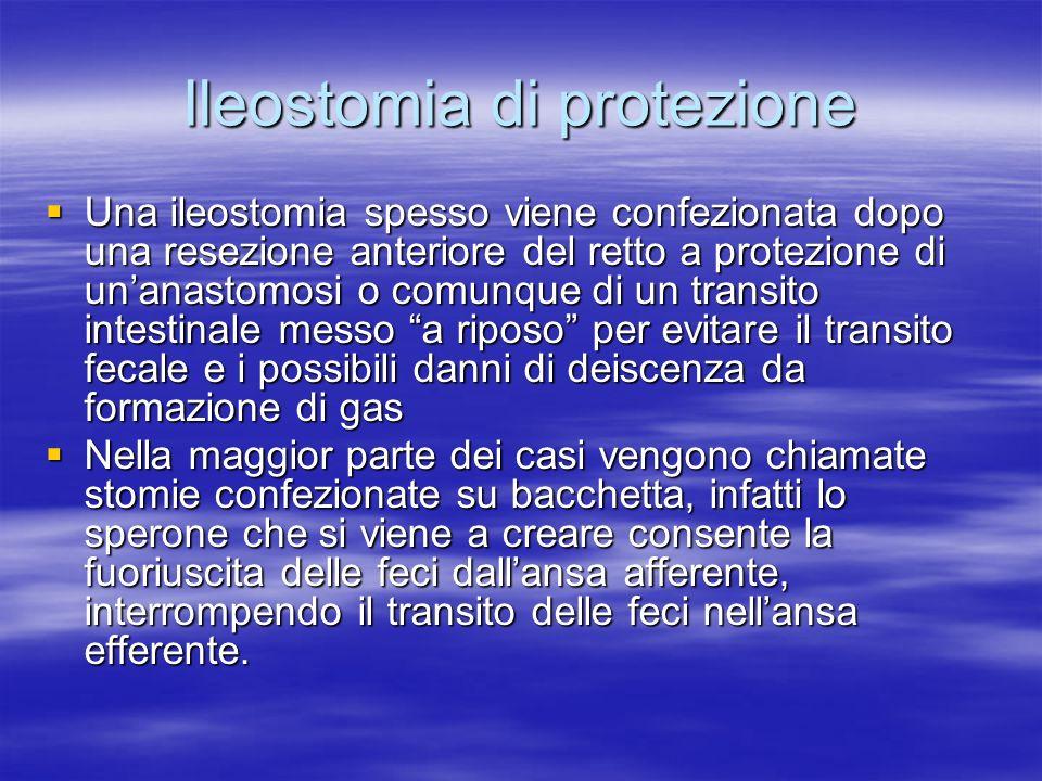 Ileostomia di protezione Una ileostomia spesso viene confezionata dopo una resezione anteriore del retto a protezione di unanastomosi o comunque di un