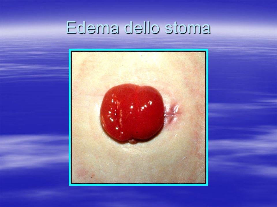 Stomia confezionata su ferita laparotomica