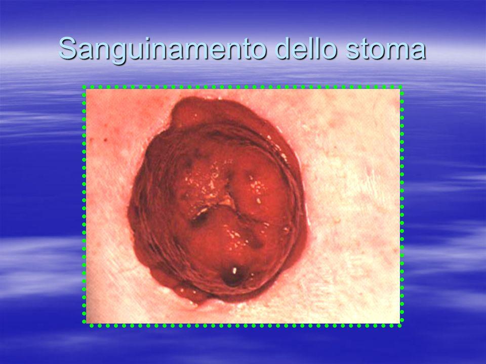 Sanguinamento dello stoma