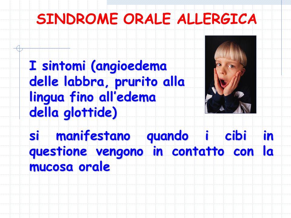 I sintomi (angioedema delle labbra, prurito alla lingua fino alledema della glottide) si manifestano quando i cibi in questione vengono in contatto co