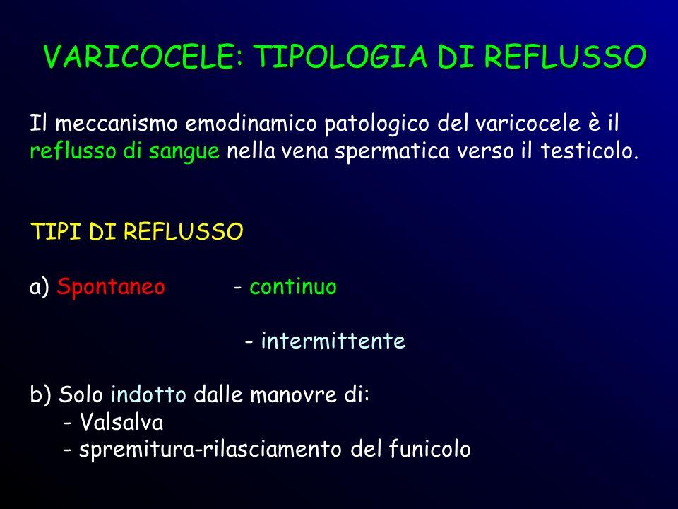 Il meccanismo emodinamico patologico del varicocele è il reflusso di sangue nella vena spermatica verso il testicolo. TIPI DI REFLUSSO a) Spontaneo -