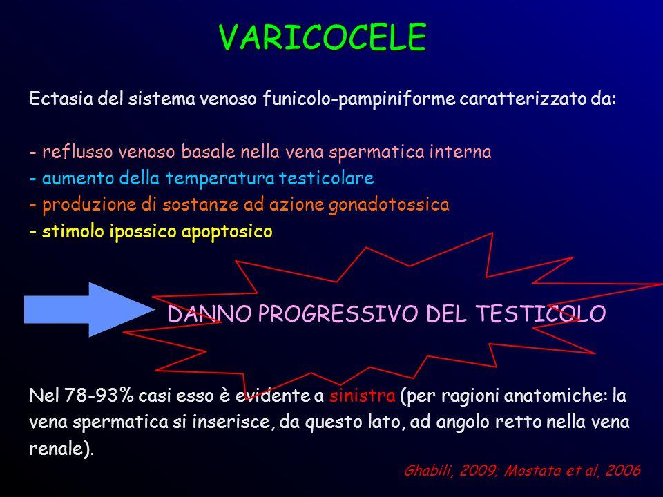 Ectasia del sistema venoso funicolo-pampiniforme caratterizzato da: - reflusso venoso basale nella vena spermatica interna - aumento della temperatura