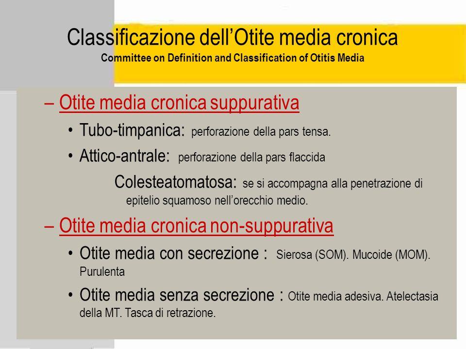 Classificazione dellOtite media cronica Committee on Definition and Classification of Otitis Media –Otite media cronica suppurativa Tubo-timpanica: pe