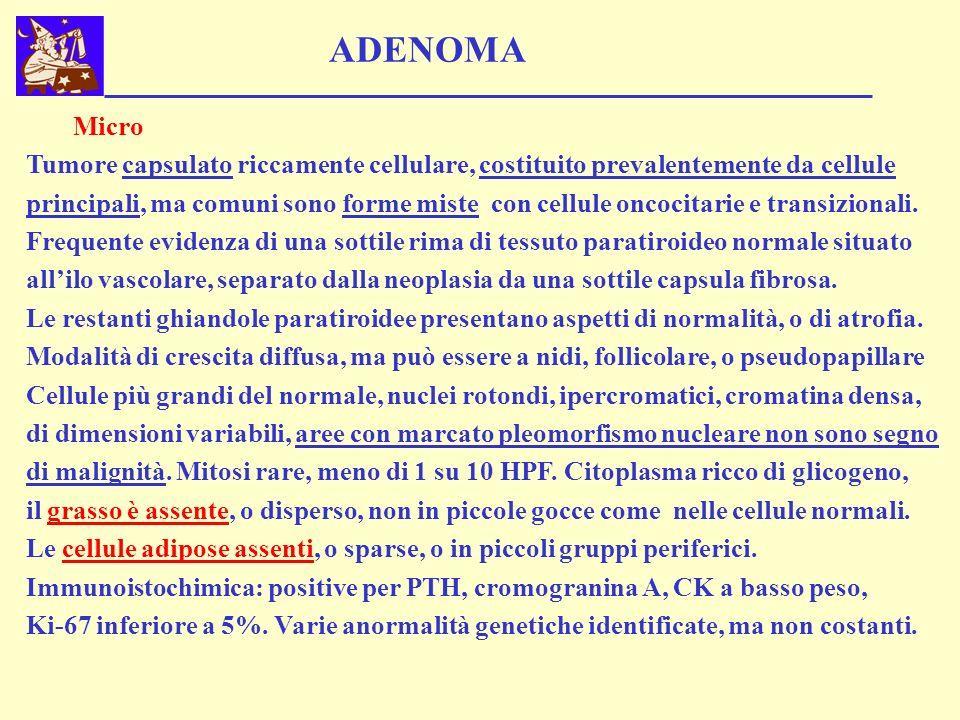 ADENOMA Micro Tumore capsulato riccamente cellulare, costituito prevalentemente da cellule principali, ma comuni sono forme miste con cellule oncocita
