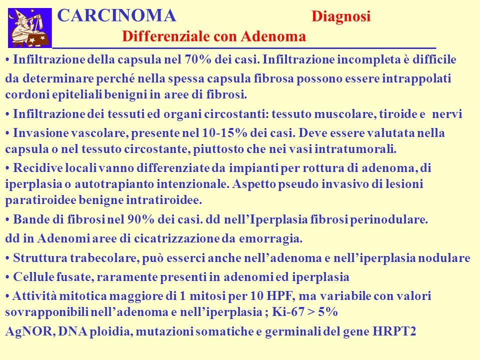 CARCINOMA Diagnosi Differenziale con Adenoma Infiltrazione della capsula nel 70% dei casi. Infiltrazione incompleta è difficile da determinare perché
