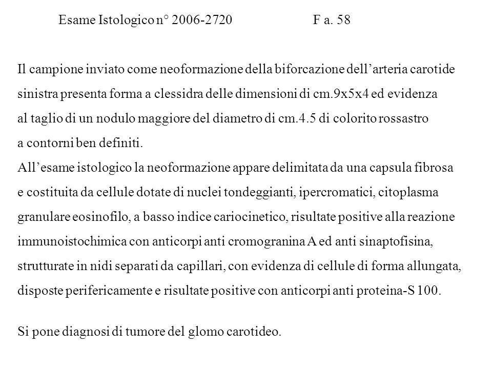 Esame Istologico n°10593.05 Paziente R. A. M a.32 Si pone diagnosi di adenoma follicolare del lobo tiroideo destro. Esame Istologico n° 2006-2720 F a.