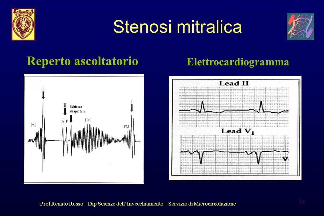 Prof Renato Russo – Dip Scienze dellInvecchiamento – Servizio di Microcircolazione 14 Stenosi mitralica Reperto ascoltatorio Elettrocardiogramma