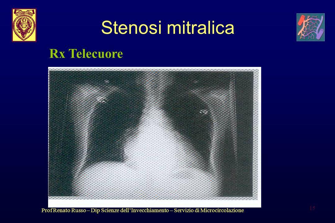 Prof Renato Russo – Dip Scienze dellInvecchiamento – Servizio di Microcircolazione 15 Stenosi mitralica Rx Telecuore