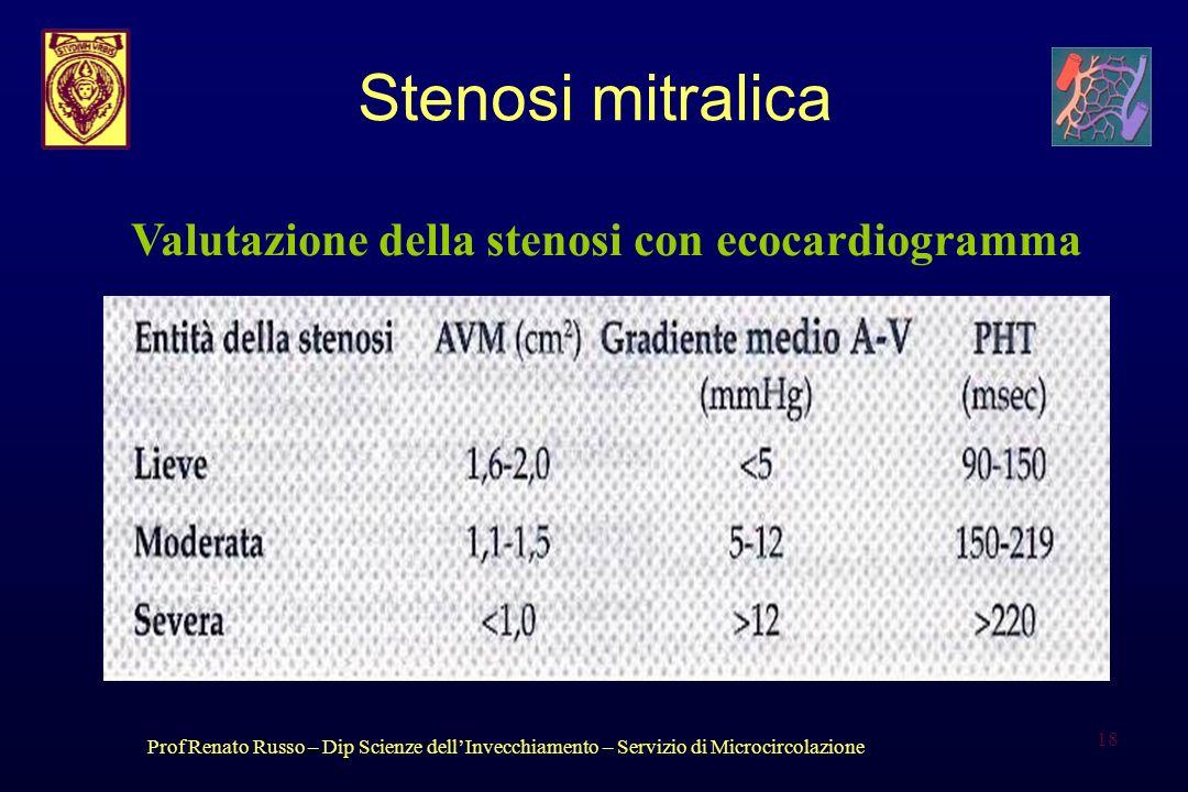Prof Renato Russo – Dip Scienze dellInvecchiamento – Servizio di Microcircolazione 18 Stenosi mitralica Valutazione della stenosi con ecocardiogramma