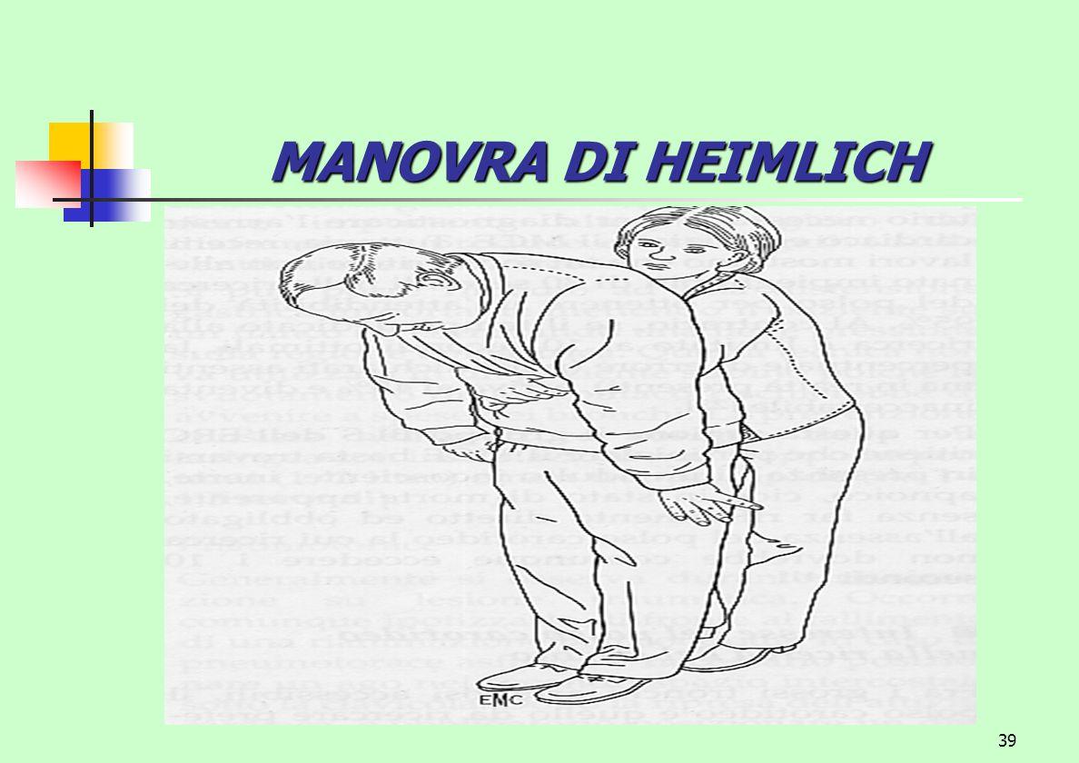 39 MANOVRA DI HEIMLICH