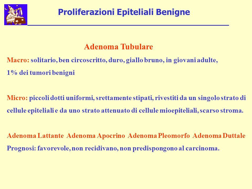 Proliferazioni Epiteliali Benigne Adenoma Tubulare Macro: solitario, ben circoscritto, duro, giallo bruno, in giovani adulte, 1% dei tumori benigni Mi