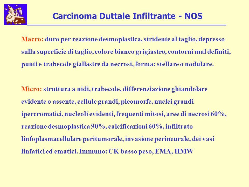 Carcinoma Duttale Infiltrante - NOS Macro: duro per reazione desmoplastica, stridente al taglio, depresso sulla superficie di taglio, colore bianco gr
