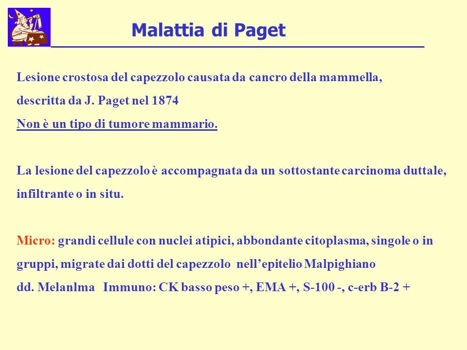 Malattia di Paget Lesione crostosa del capezzolo causata da cancro della mammella, descritta da J. Paget nel 1874 Non è un tipo di tumore mammario. La