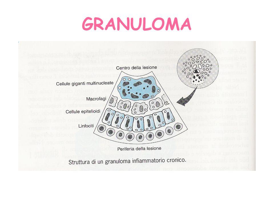 Granuloma immunologico: prevalenza di linfociti Granuloma non immunologico: prevalenza di macrofagi