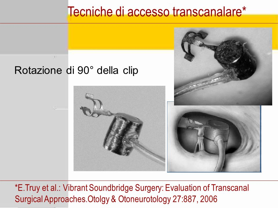 Tecniche di accesso transcanalare* *E.Truy et al.: Vibrant Soundbridge Surgery: Evaluation of Transcanal Surgical Approaches.Otolgy & Otoneurotology 27:887, 2006 Rotazione di 90° della clip