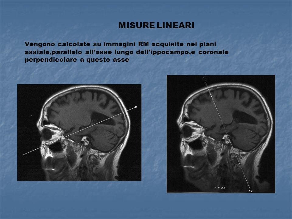 NEUROIMAGING FUNZIONALE -SPECT- -ad alta sensibilità (Xenon-133) -ad alta definzione (HMPAO) In AD :deficit di perfusione nella regione temporo-paietale, deficit correlato con il deficit cognitivo, migliore accuratezza diagnostica nelle forme AD lieve o AD possibile Diagnosi differenziale: in AD deficit perfusionale posteriore(parieto-temporale) in DFT anteriore(fronto-temporale) in VD a chiazze in Lewy posteriore (ma diverso da AD) Rapporto costo/beneficio:problema aperto (sensibilità 91% e specificità 86%)