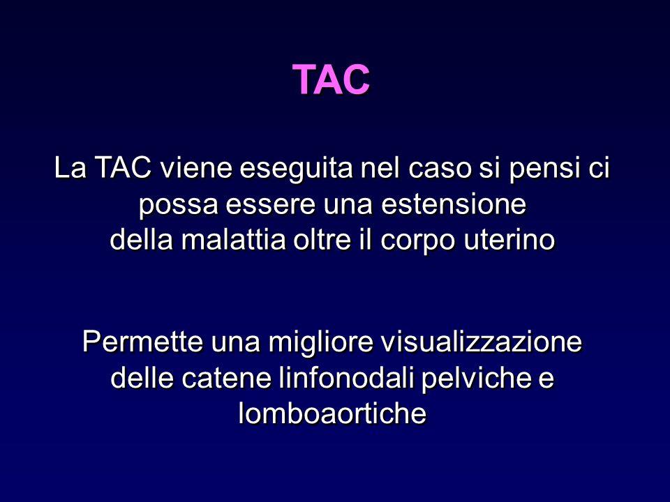 TAC La TAC viene eseguita nel caso si pensi ci possa essere una estensione della malattia oltre il corpo uterino La TAC viene eseguita nel caso si pen