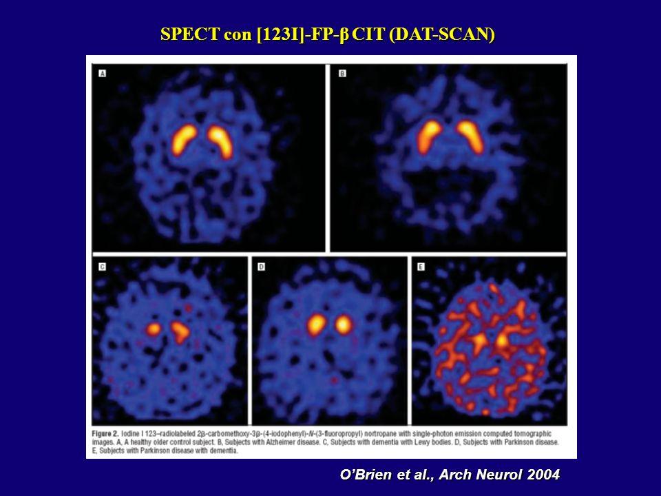 SPECT con [123I]-FP-β CIT (DAT-SCAN) OBrien et al., Arch Neurol 2004