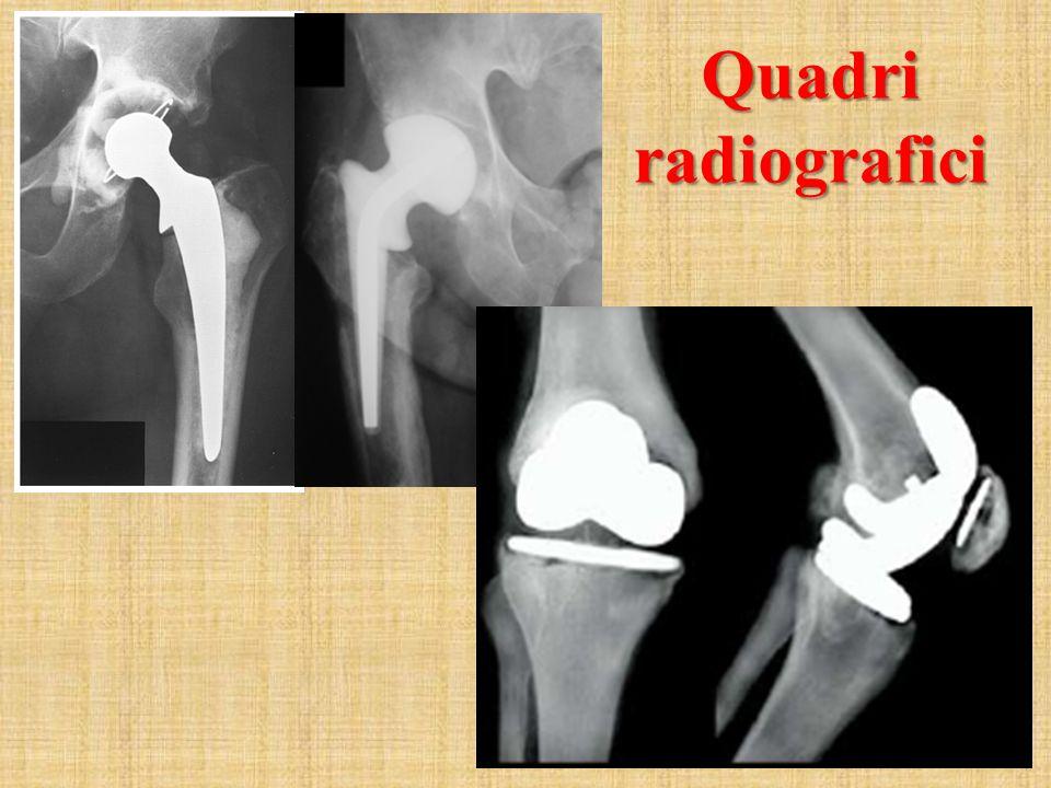 F RATTURE PERIPROTESICHE Quadri radiografici ginocchio