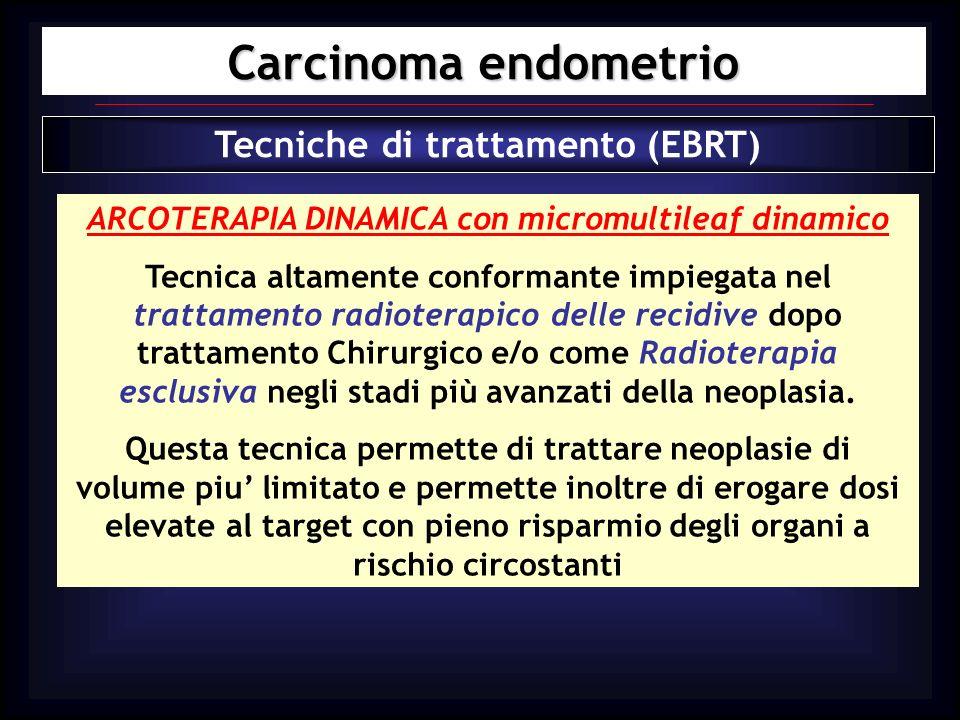 Carcinoma endometrio Tecniche di trattamento (EBRT) ARCOTERAPIA DINAMICA con micromultileaf dinamico Tecnica altamente conformante impiegata nel tratt