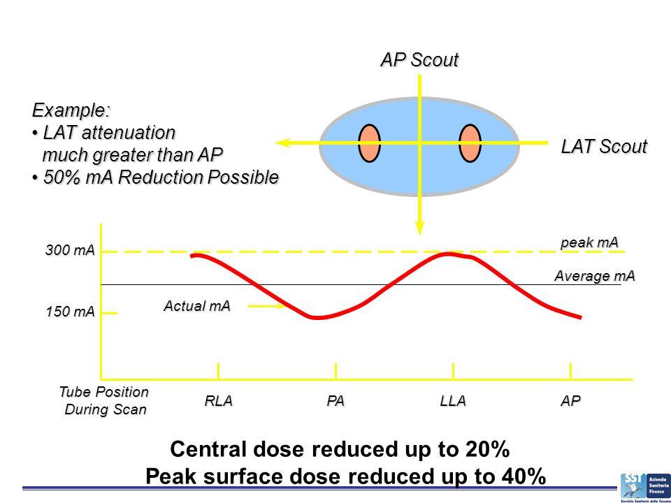 AP Scout LAT Scout peak mA Example: LAT attenuation LAT attenuation much greater than AP much greater than AP 50% mA Reduction Possible 50% mA Reducti