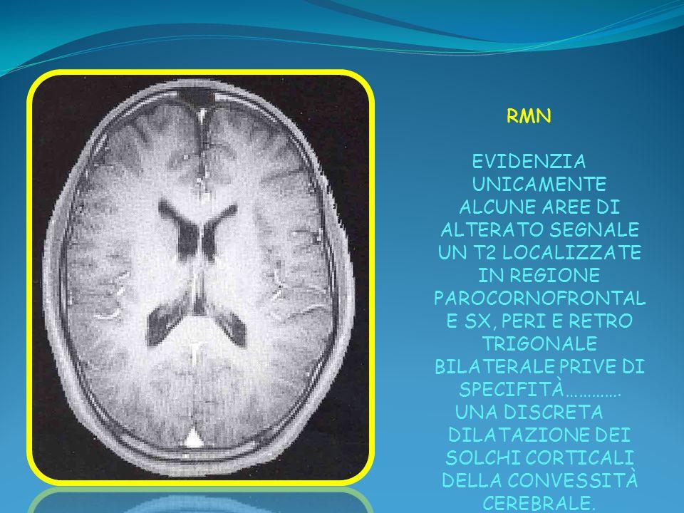 RMN EVIDENZIA UNICAMENTE ALCUNE AREE DI ALTERATO SEGNALE UN T2 LOCALIZZATE IN REGIONE PAROCORNOFRONTAL E SX, PERI E RETRO TRIGONALE BILATERALE PRIVE D