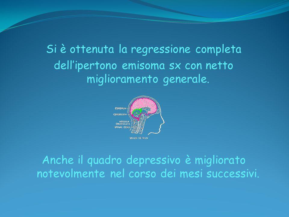 Si è ottenuta la regressione completa dellipertono emisoma sx con netto miglioramento generale. Anche il quadro depressivo è migliorato notevolmente n