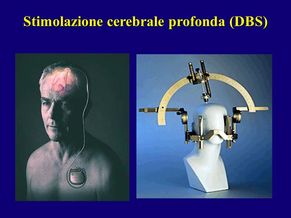 Stimolazione cerebrale profonda (DBS)
