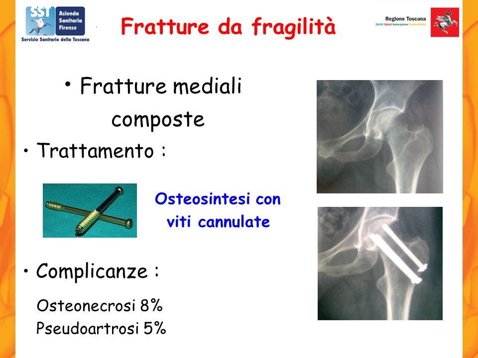 Trattamento : Osteosintesi con viti cannulate Complicanze : Osteonecrosi 8% Pseudoartrosi 5% Fratture mediali composte Fratture da fragilità