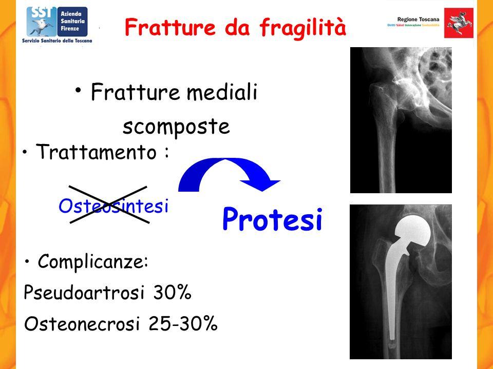 Osteosintesi Complicanze: Pseudoartrosi 30% Osteonecrosi 25-30% Trattamento : Fratture mediali scomposte Protesi Fratture da fragilità
