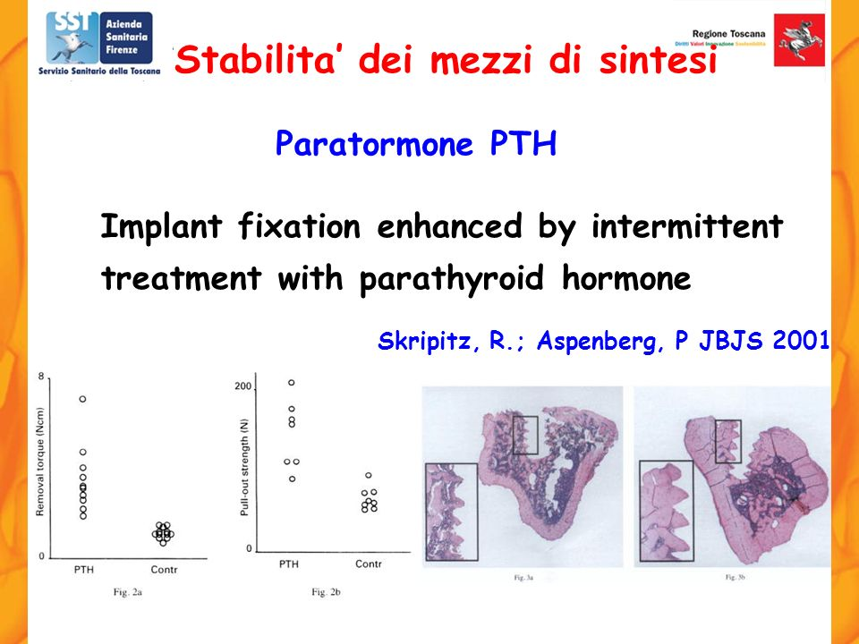Implant fixation enhanced by intermittent treatment with parathyroid hormone Skripitz, R.; Aspenberg, P JBJS 2001. Stabilita dei mezzi di sintesi Para