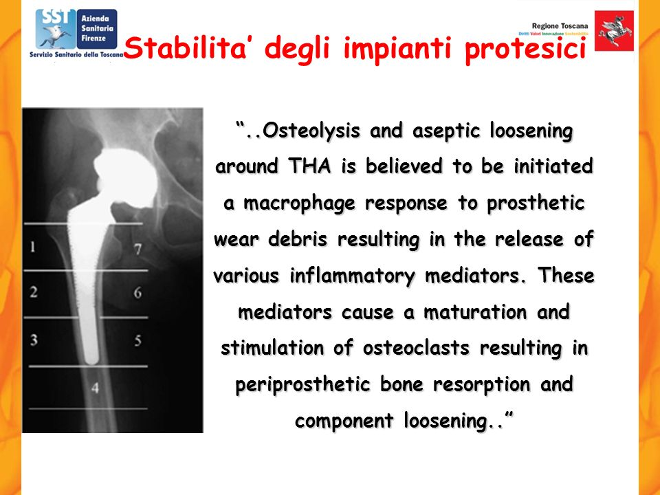 ..Osteolysis and aseptic loosening around THA is believed to be initiated a macrophage response to prosthetic wear debris resulting in the release of