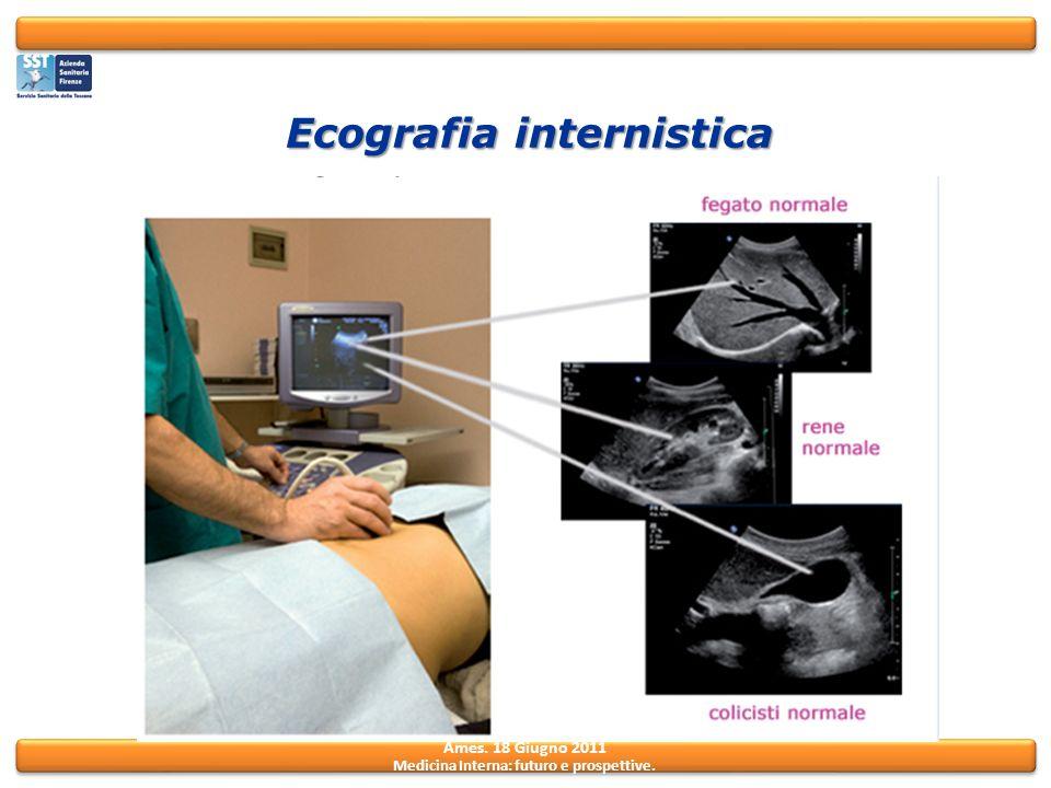 Ames. 18 Giugno 2011 Medicina Interna: futuro e prospettive. Ecografia internistica
