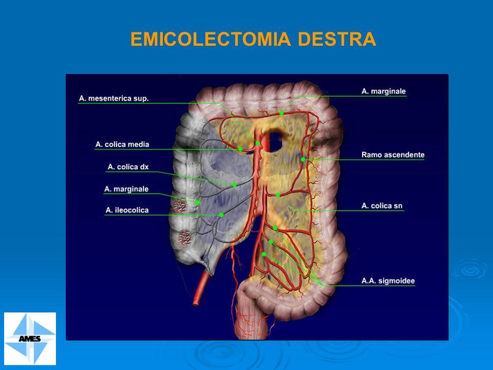 EMICOLECTOMIA DESTRA