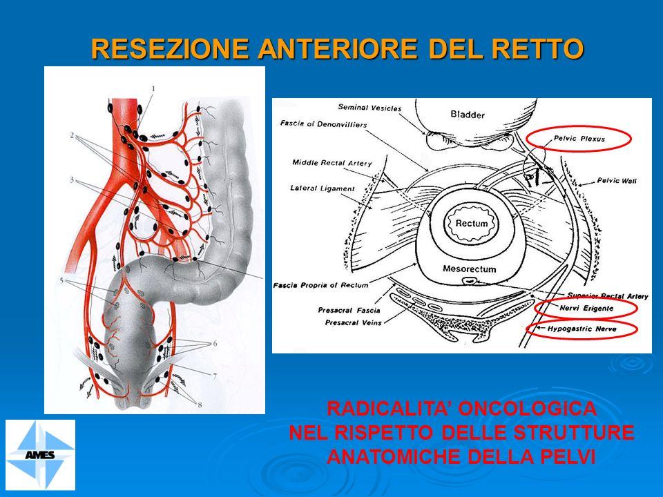 RESEZIONE ANTERIORE DEL RETTO RADICALITA ONCOLOGICA NEL RISPETTO DELLE STRUTTURE ANATOMICHE DELLA PELVI